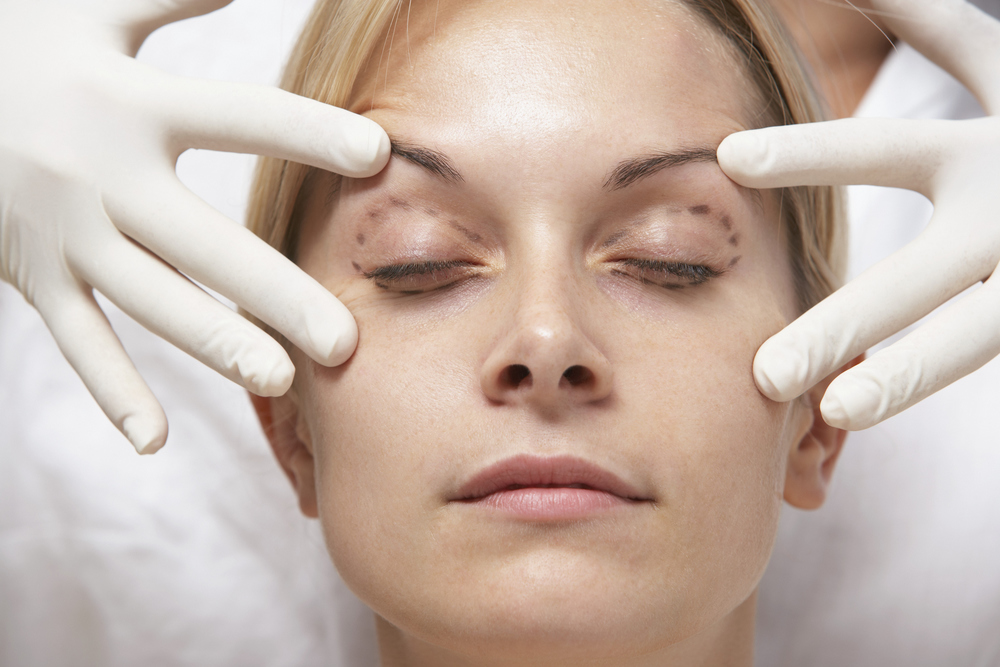 Important Things To Note About Eyelid Surgery