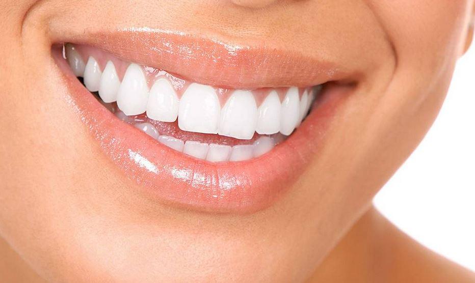 Rotting Teeth: 3 Reasons To Consider Dental Implants